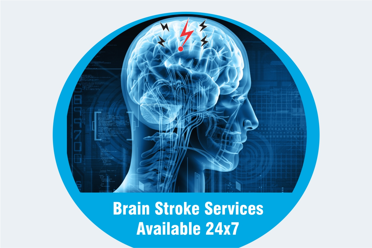 Brain Stroke Services Available 24×7